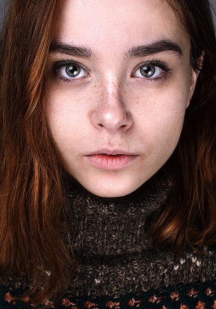 Now is the Time to Tackle Hyperpigmentation